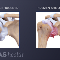 Illustration comparing normal shoulder joint anatomy to anatomy of shoulder with adhesive capsulitis