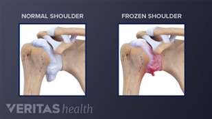 Medical illustration showing a normal adult shoulder joint and an adult shoulder joint with adhesive capsulitis