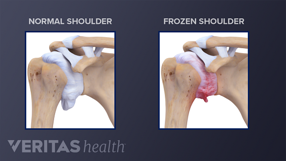 Illustration comparing the anatomy of a normal shoulder joint to a shoulder joint with adhesive capsulitis