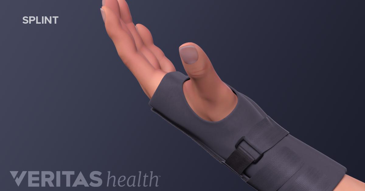 Durere la temperaturi ridicate la nivelul picioarelor ?i a spatelui inferior