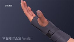 Hand with carpal tunnel braced