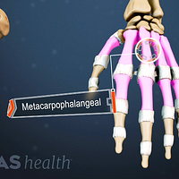 Dorsal view of the hand labeling the metacarpophalangeal joints.