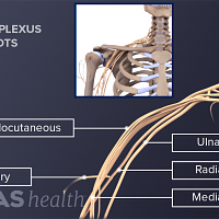 Illustration of the nerve roots of the brachial plecus