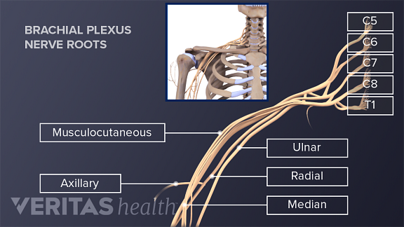 Medical illustration of the nerve roots that make up the brachial plexus