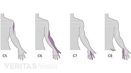 Cervical dermatomes C5, C6, C7, and C8.
