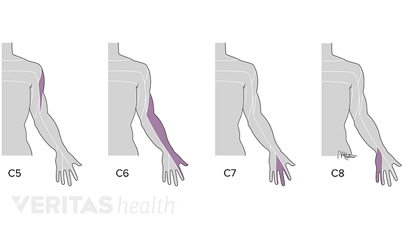 Medical illustration of the dermatomes affected by cervical nerve root impingement
