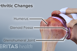 Illustration of arthritic changes in the glenohumeral joint.