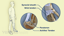 Comparison of the Paratenon of the Achilles tendon and the synovial sheath of the wrist tendon