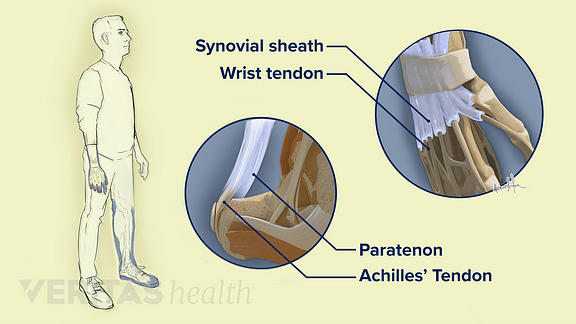 Illustration comparing the Paratenon of the Achilles tendon and the synovial sheath of the wrist tendon