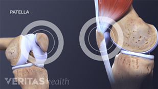 The patella and patellar tendon