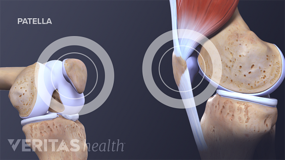 Medical illustration of the patella and patellar tendon