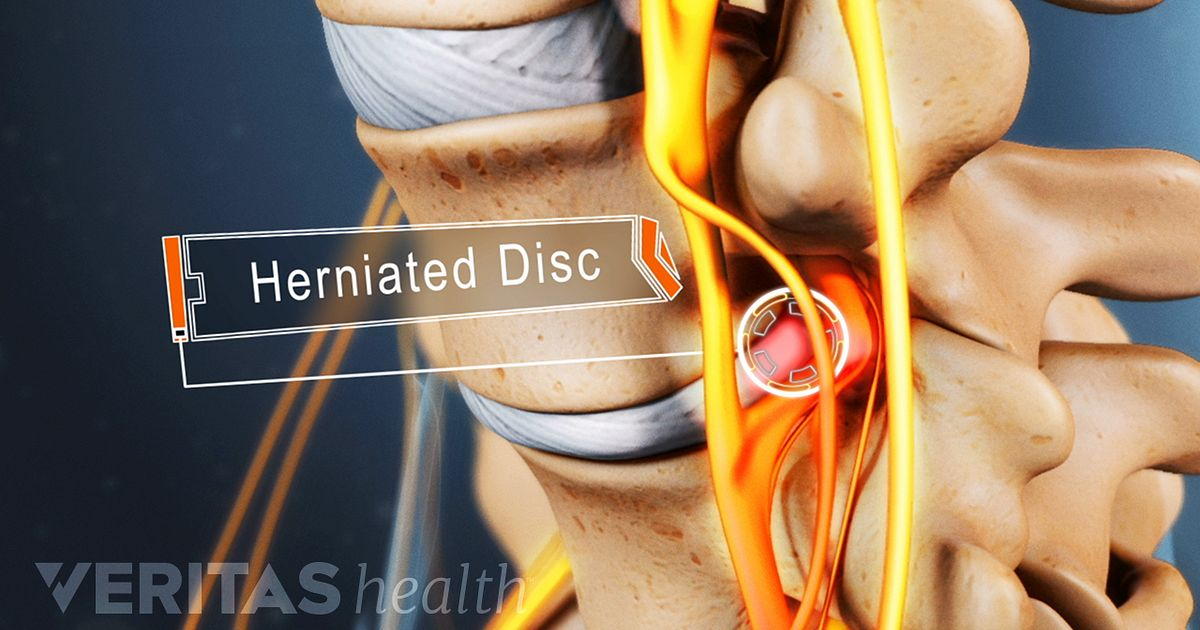 Slipped Disk  Causes and Best Ayurvedic Treatment