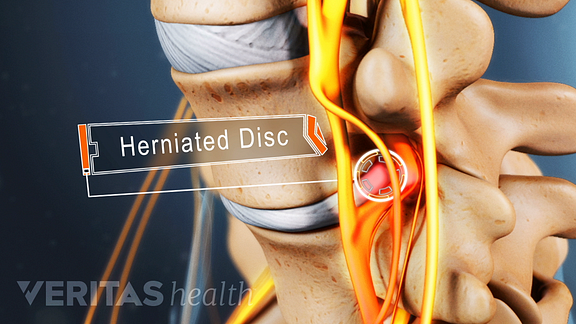 A herniated disc can cause pain, numbness, and tingling in the back and lower extremities.