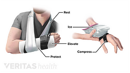 Wrist in a sling to rest and protect and someone icing wrist with compression