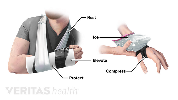 illustration of wrist in a sling and someone icing wrist with a brace. with labels: protect, rest, ice, compress, elevate