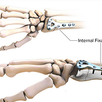 Illustration of an internal fixation of a distal radius fracture
