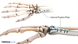 An internal fixation placed for a distal radius fracture
