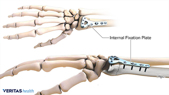 Medical illustration of how an internal fixation for a distal radius fracture