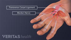 Carpal Tunnel Syndrome vs. Soft Tissue Inflammation