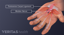 Palmar view of the hand showing transverse carpal ligament, flexor tendons and meridian nerve.