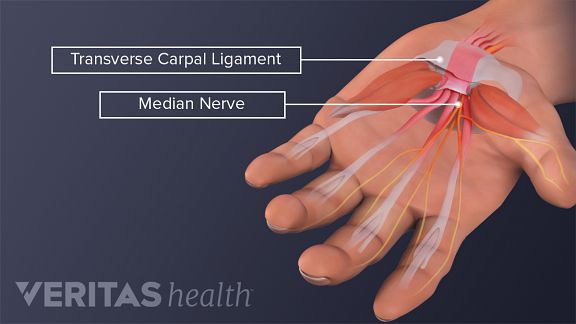 Anatomy Hand Carpal Tunnel Syndrome on Left Foot Tendons Diagram