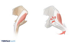 Side-by-side illustration of an external snapping hip