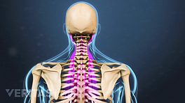 Medical illustration of the upper spine, back muscles are highlighted
