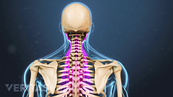 Causes of neck strain