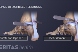 Medical illustration of an Achilles tendon repair procedure