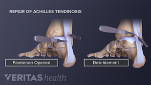 Achilles tendon repair procedure showing the incision site, paratenon opened, and debridement.