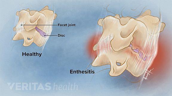 Cervical Ankylosing Spondylitis