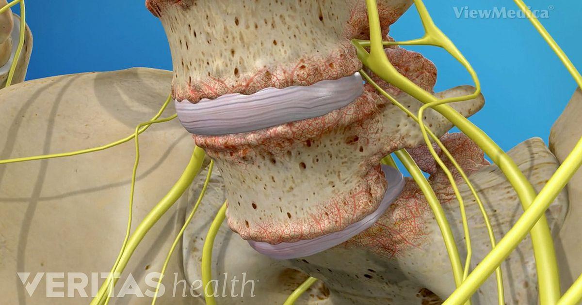 Spondylolisthesis Symptoms and Causes Video