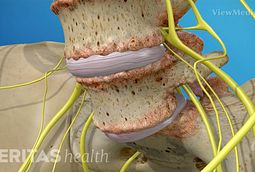 Spondylolisthesis Symptoms and Causes Video