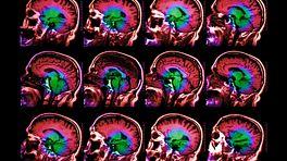 Colored MRI brain scan