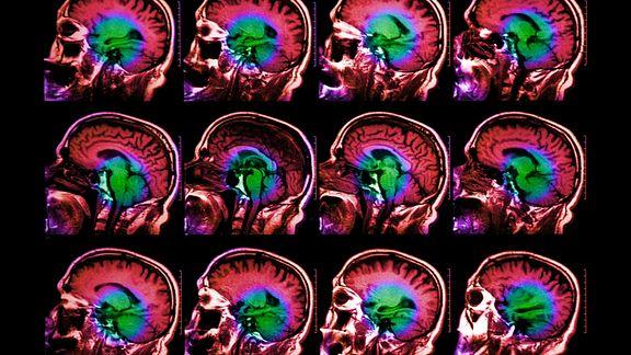 Pain Brain Connection