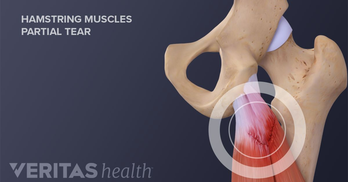 how acute hamstring pull occurs A hamstring injury can also occur as a result of a direct blow to the  grade iii  hamstring strain: severe injury that can cause pain with walking.