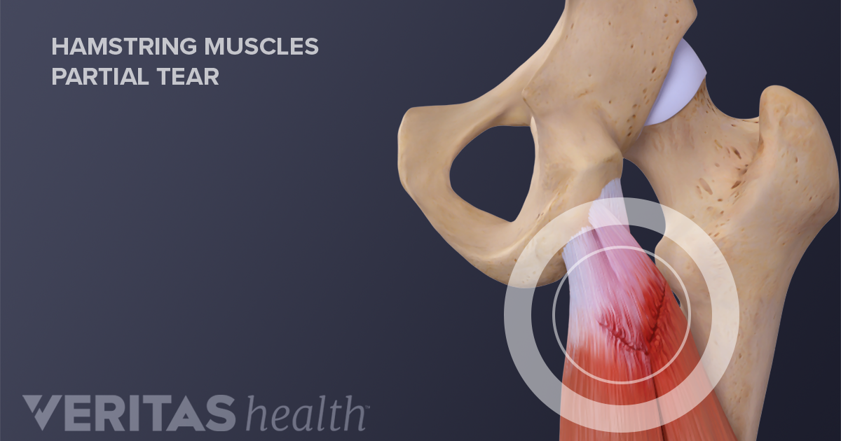 Hamstring Tears Signs And Symptoms