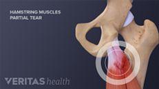 Hamstring Tears: Diagnosis