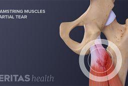 anatomy of partial hamstring tear