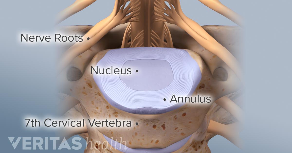 Cervical Discs