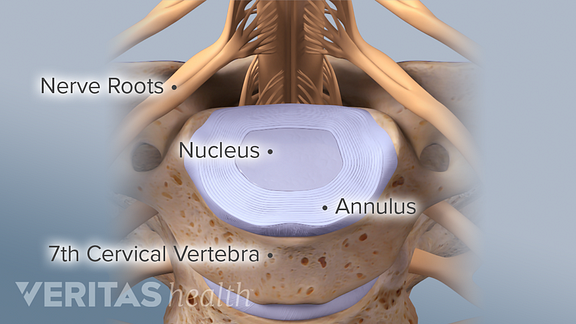 Spinal discs consist of two parts: The outer portion of the disc (annulus fibrosus) and the inner core (nucleus pulposus).