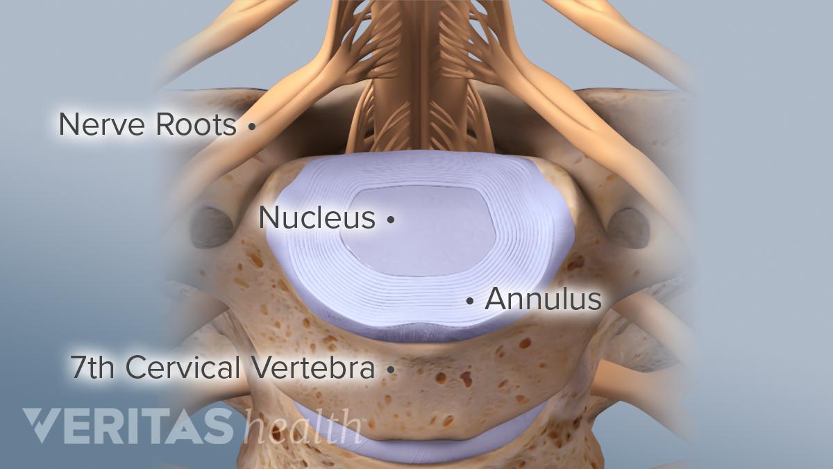 C6-C7 vertebral segment labeling nerve roots, nucleus, annulus, cervical vertebra.