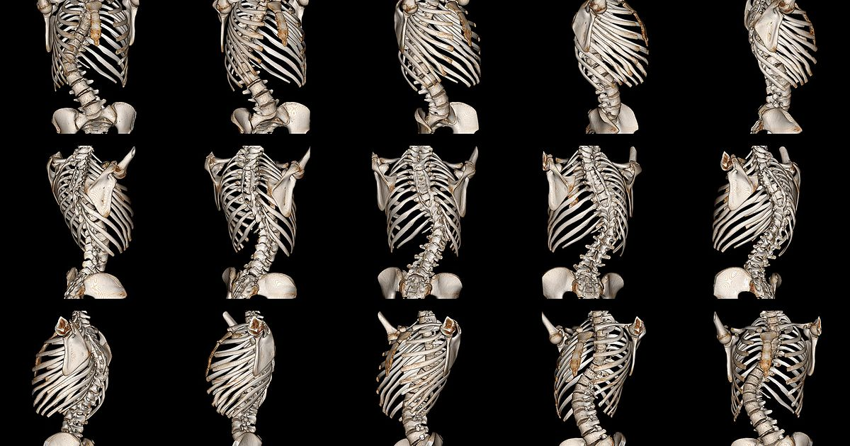 all about degenerative scoliosis