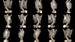 Assortment of scans detecting scoliosis in the spine.