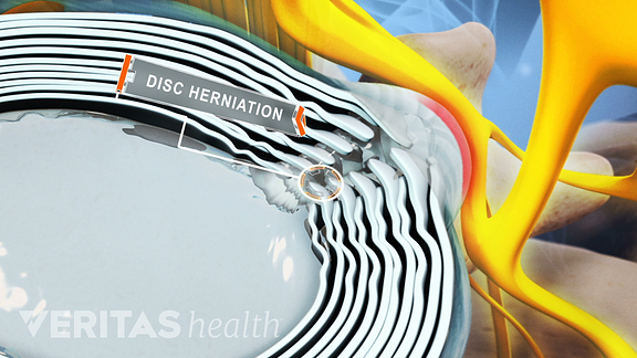 Herniated Disk with Leakage