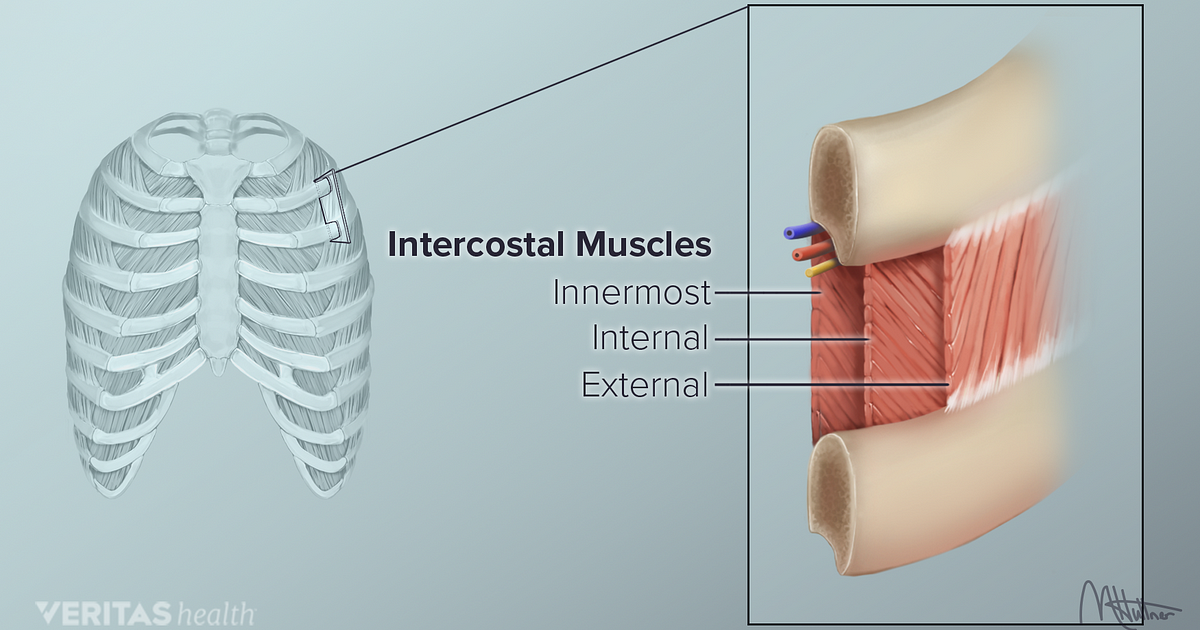 Upper Back Pain from Intercostal Muscle Strain