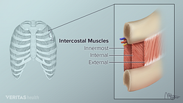 Medical illustration of intercostal muscle anatomy