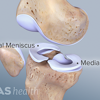 View of the lateral and medial menisci