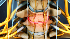 Anterior view of cervical spine showing degenerated disc.