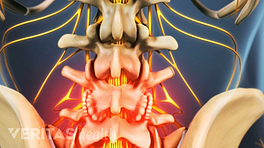 Bone spurs in the lower spine radiating pain